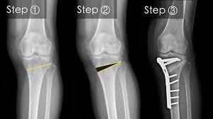artroza în arcade durere în articulația gleznei picioarelor
