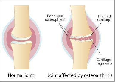 Artroza posttraumatică a umărului și a genunchiului. Artrita prognosticului articulației cotului