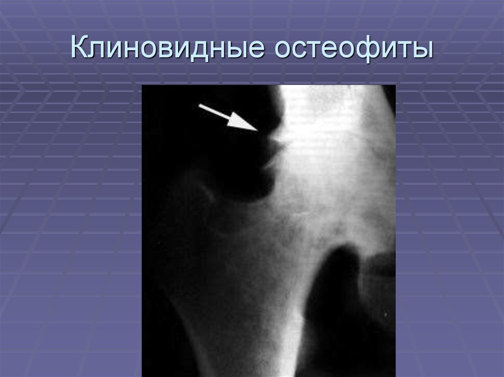 articulațiile din țigări pot răni