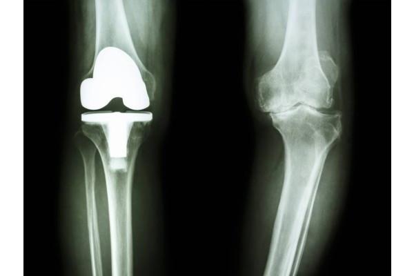 cât de mult doare articulația cu guta Artroza tratamentului de exacerbare a genunchiului