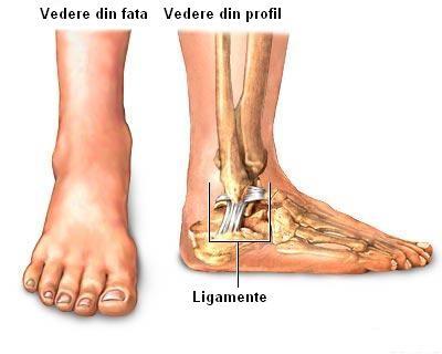 umflatura langa oul piciorului la glezna