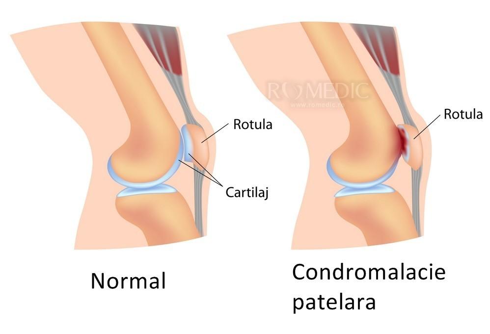 dau un grup pentru artroza articulației genunchiului