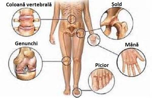 ce să străpungeți cu durere în articulațiile picioarelor