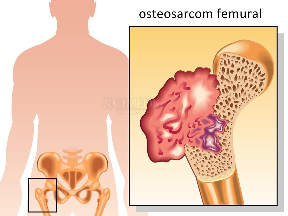 neurologia doare articulația șoldului