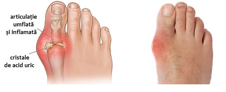 boala articulațiilor picioarelor la bărbați