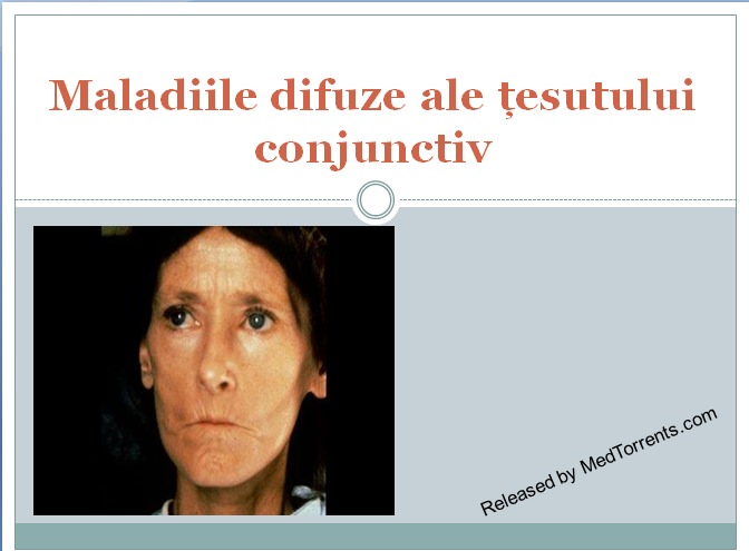 boli de țesut conjunctiv difuz