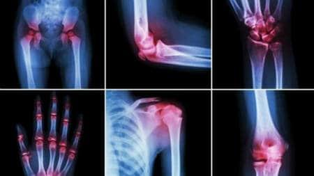 dureri articulare la adulți