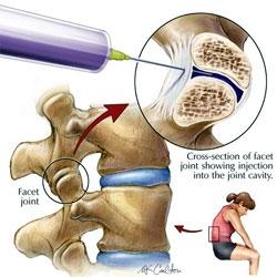 injectii pentru reumatism, Ce injecție pentru dureri articulare