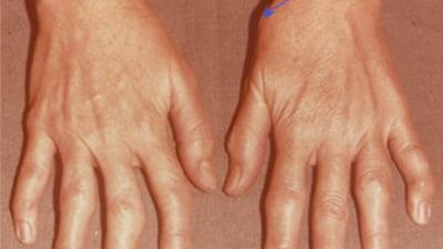 tratamentul simptomelor artrozei degetelor