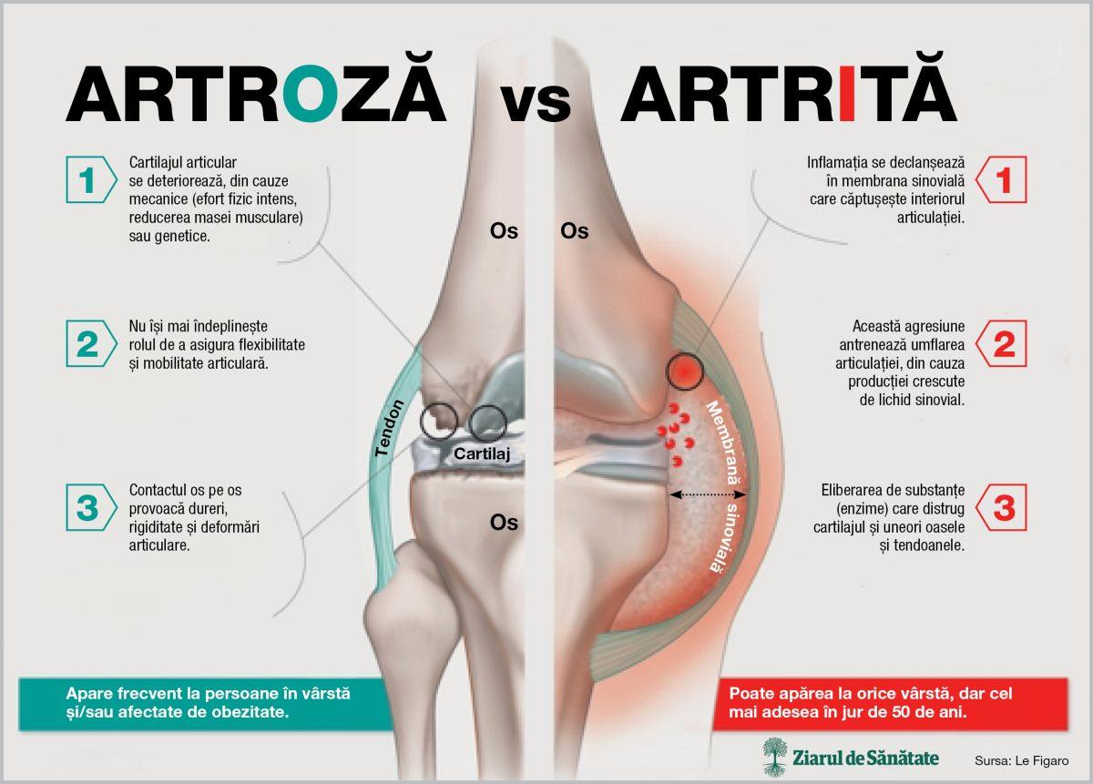artroză articulară și tratament
