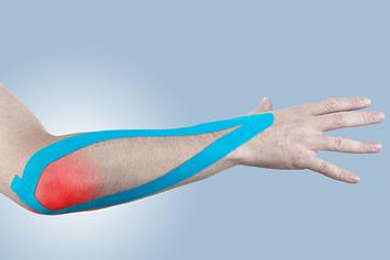 erizipelele tratamentului articulației cotului