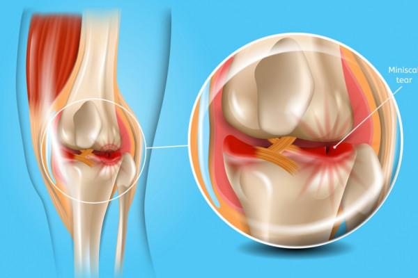 tratament după îndepărtarea meniscului genunchiului