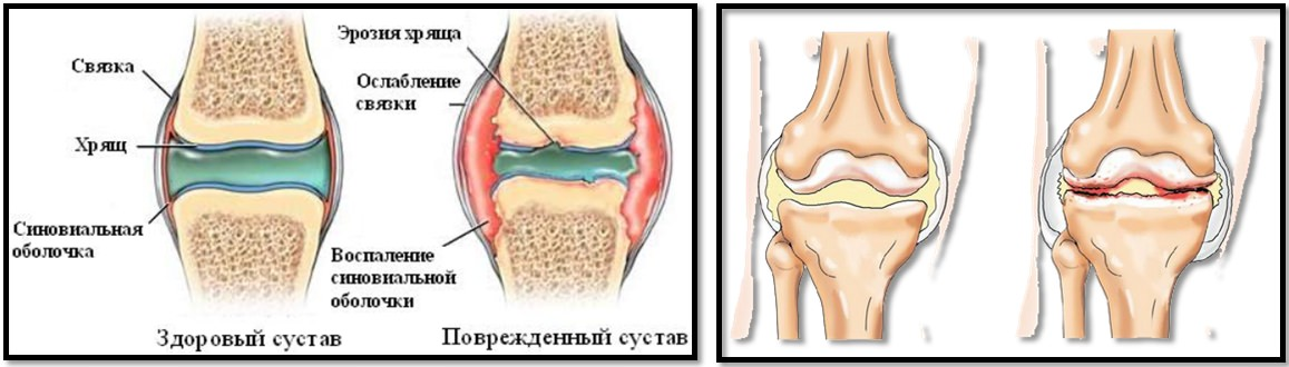 Genuflexiuni artroza