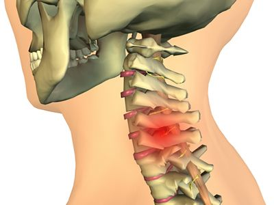 calmante ale osteochondrozei cervicale