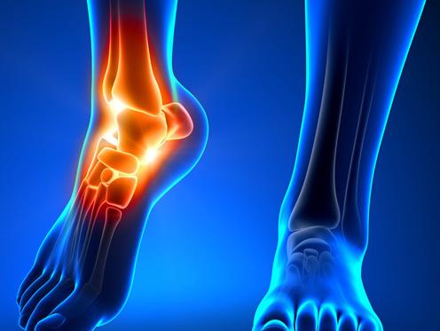 care este deteriorarea ligamentelor articulației gleznei tratament pentru edemul genunchiului pentru ameliorarea durerii