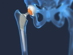 care să contacteze cu artroza articulației șoldului
