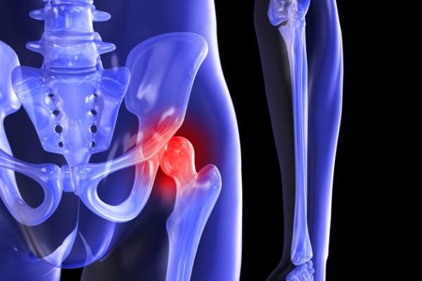 tratament de depășire a șoldului inflamație articulară după o fractură a brațului