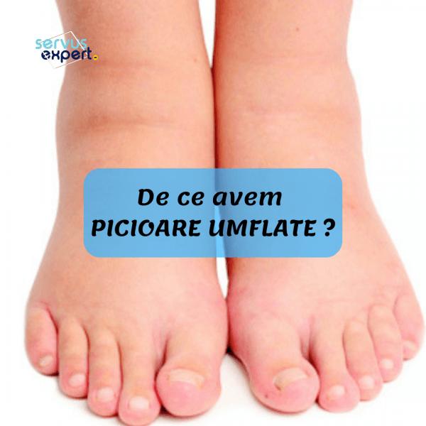 durere articulară și piciorul umflat