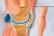 durere în tratamentul articulațiilor genunchiului ibuprofen