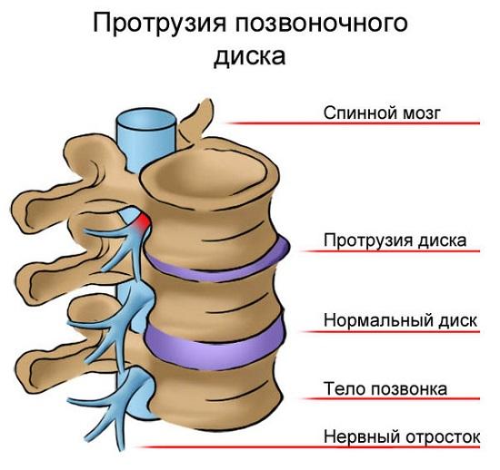 osteoartrită a genunchiului tratament de 3 grade menovazină pentru durere în articulațiile picioarelor