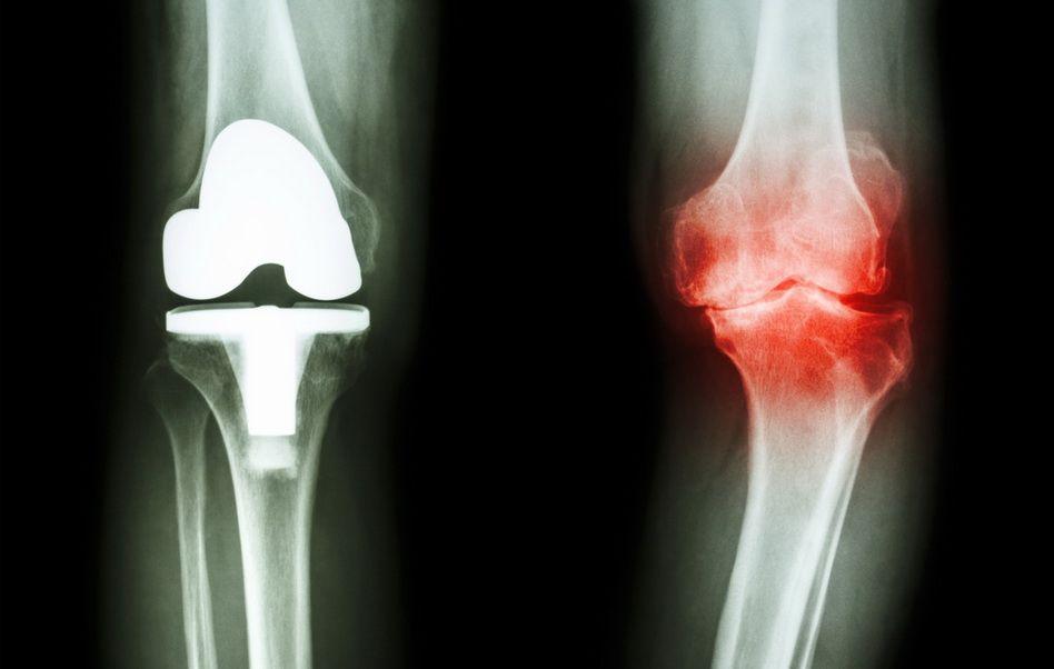 ce unguente vindecă articulațiile dacă articulația degetului mare doare