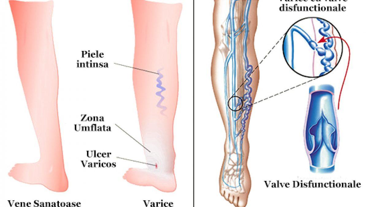 artroză tratamentul articulației gleznei