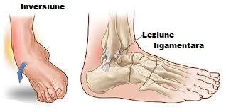cremă articulară după luxație dureri de șold după întindere