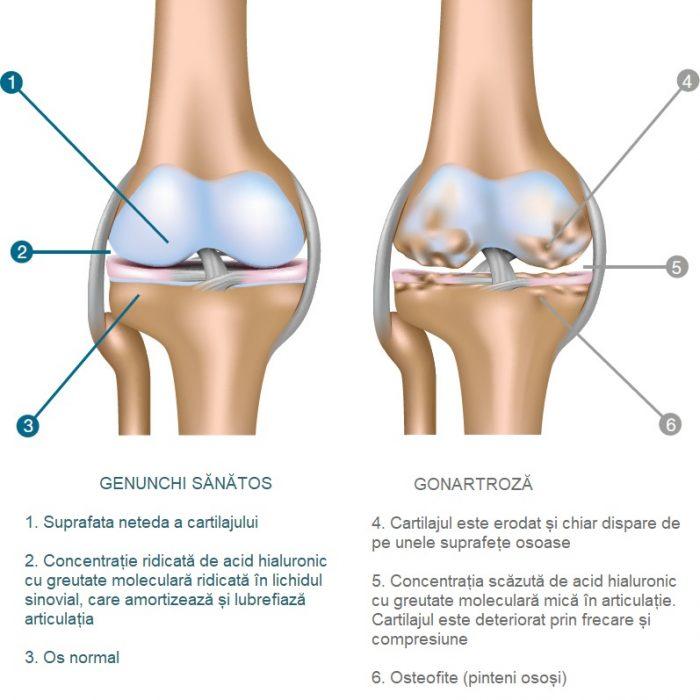 cu osteochondroza deformantă  pielea articulațiilor tratament naturist artrita gutoasa