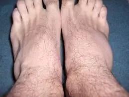 cum să tratezi entorse articulare ale piciorului