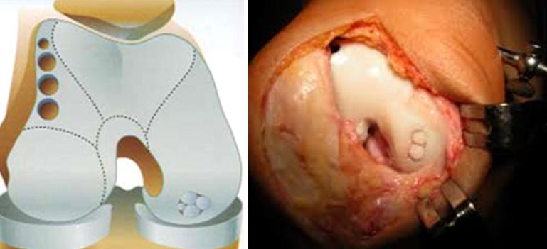 cum să tratezi leziunile articulare durere în articulațiile mâinilor la alăptare