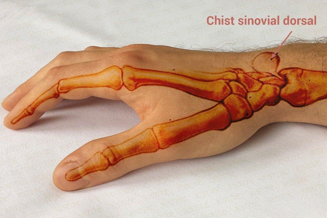 cum să tratezi o articulație a unei mâini