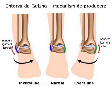 durerea articulației degetelor doare tratament pentru inflamația articulației cotului
