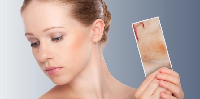 de ce după aplicarea artropantului cremă există roșeață