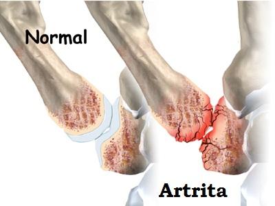 tratamentul artritei degetelor de la picior