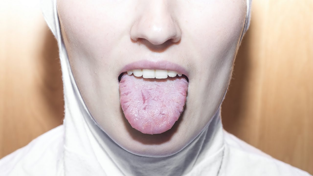 boli ale articulațiilor faciale