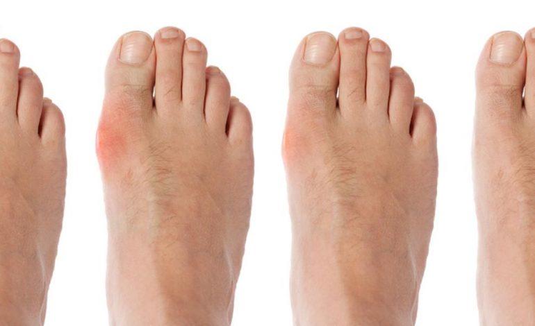 de ce doare piciorul? dureri articulare la unguent