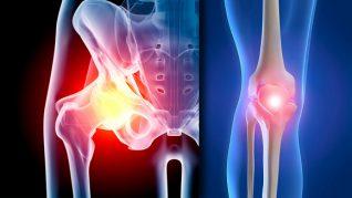 artroza de gradul doi al genunchiului