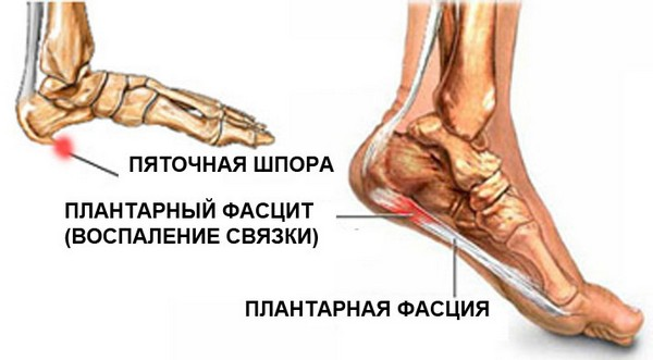 datorită căreia articulațiile picioarelor pot răni