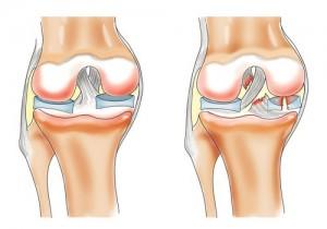 deteriorarea meniscului genunchiului cu 1-2 grade tratamentul coxartrozei deformane ale articulației șoldului
