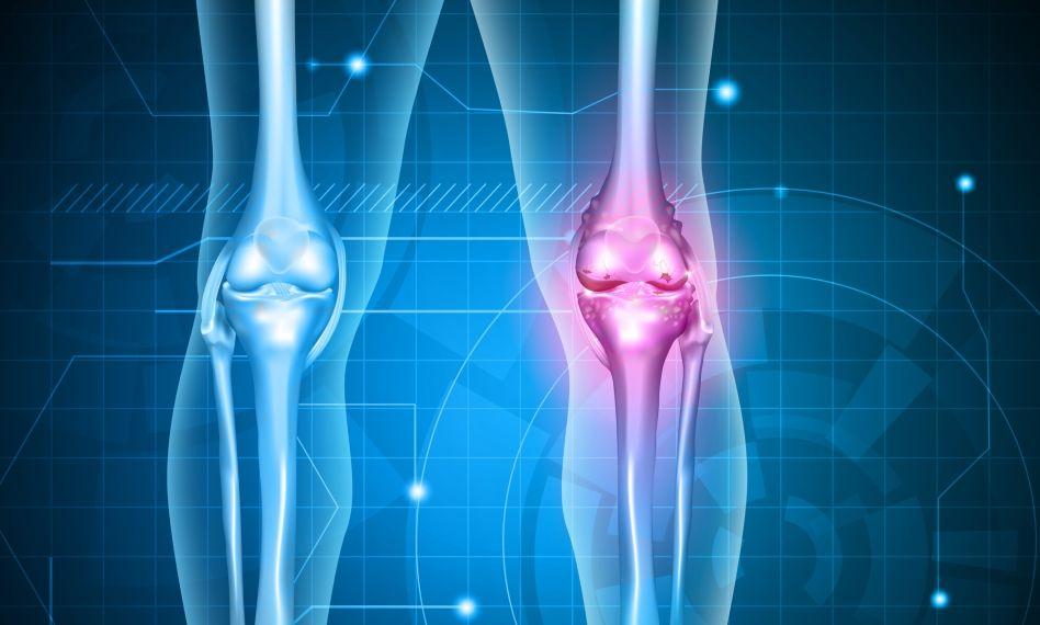 dezvoltarea artrozei genunchiului