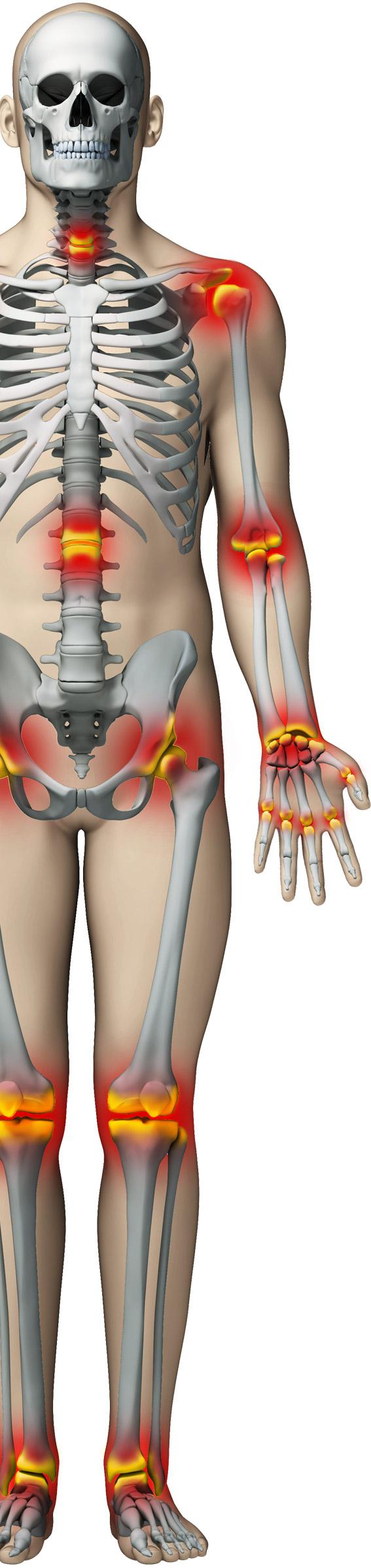 durere constantă în coloana vertebrală și articulații
