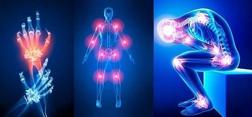 Deteriorarea oaselor și a articulațiilor la adulți. Boli ale oaselor si tratamentul acestora