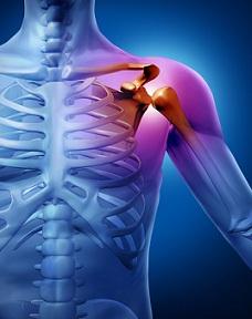 Durerea de umar | Simptome si tratamente – Voltaren