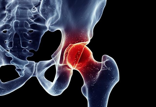 durere ascuțită la șold în articulație