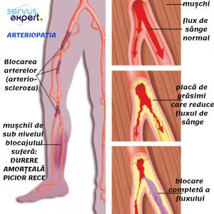 durere la nivelul vaselor sau articulațiilor picioarelor durere severă în articulațiile gleznei