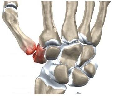 durere în articulația încheieturii mâinii drepte