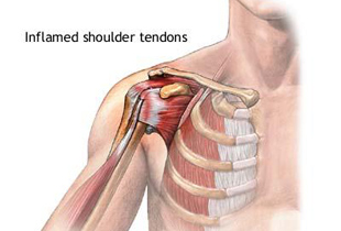 durere în articulația umărului brațului în mișcare metode de examinare subiectivă a bolilor articulare
