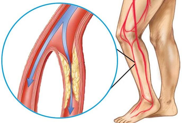 durere în articulațiile picioarelor la mers durere în mușchii spatelui articulațiilor genunchiului