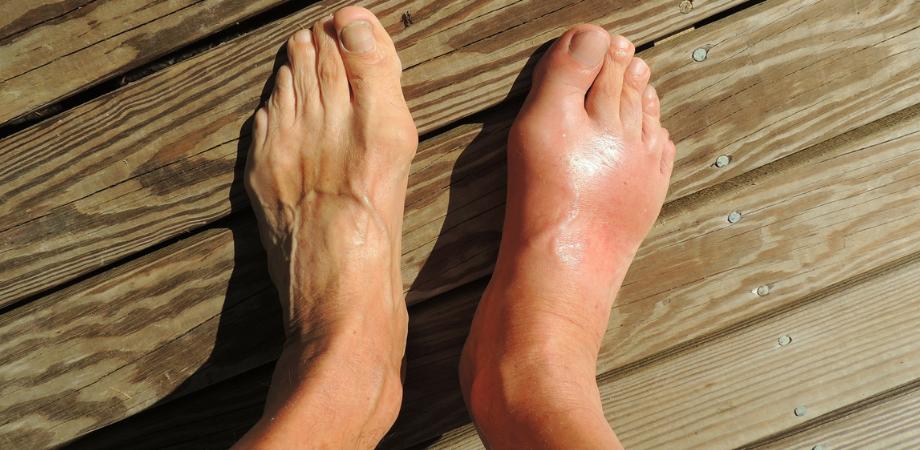 durere în cauza articulației gleznei și tratament face clic pe articulații după rănire