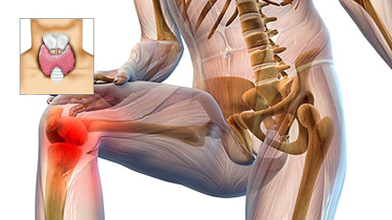 dureri articulare cu hipotiroidism tratamentul artrozei în kmv